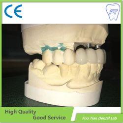 مختبر مواد الأسنان زرع الأسنان مخصص كامل محيط زيركونيوم التاج بدون البورسلين