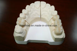 Porcelana dental Fused to Metal Crown con aspecto natural y. Margen preciso
