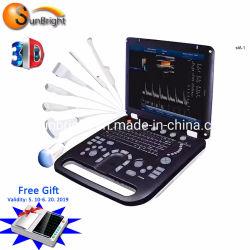 Ordinateur portable PW Doppler couleur de Diagnostic Ultrasound Equipment