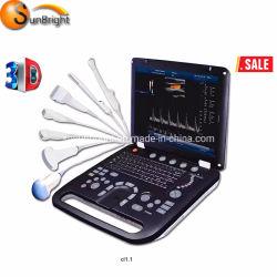 """3D Laptop van het Scherm van hoge Resolutie Goedkope 15 """" LCD Kleur Doppler"""