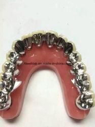 Porcellana dentale fusa al ponte di metallo con occlusale completamente in metallo