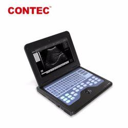 أجهزة محمولة تعمل بالموجات فوق الصوتية Contec Cms600p2 /B-Ultrasound