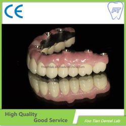 مختبر مواد الأسنان زرع الأسنان مخصص كامل محيط زيركونيوم التاج بدون البورسلين للبيع
