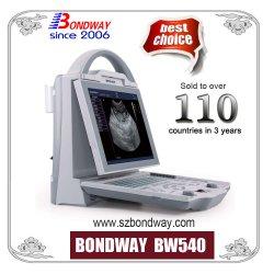 Цифровой ультразвукового сканирования машины, портативные ультразвуковые машины, ультразвуковой датчик, ультразвуковой датчик цена, представляет собой диагностического ультразвукового сканера