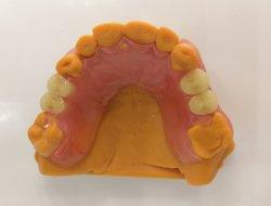 Valplast Dentaduras Parciales personalizada flexible con dientes de acrílico de Shenzhen Minghao Laboratorio dental