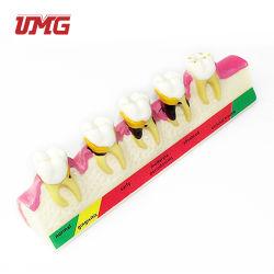 教育装置の歯周病のデモンストレーションモデル