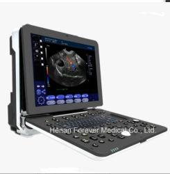 Bewegliches volles Digital-Inner-Prüfungs-Farben-Doppler-Ultraschall-Gerät