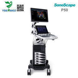 De Ysenmed Geavanceerde 4D Ultrasone klank van Doppler Sonoscape van de Kleur