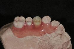 Unzerbrechliche Valplast flexible Gebissetcs-medizinisches Material mit gutem Flexibilit