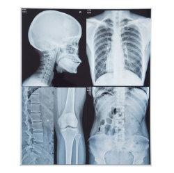 Те же качества, как Fuji Film сухой медицинских струйных рентгеновской пленки для использования медицинского учреждения