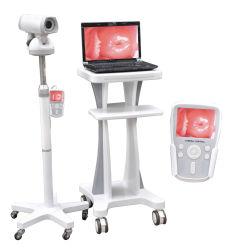 Video Colposcópio Conectado com o Monitor