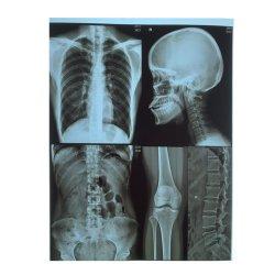 Производство белый и голубой цвета лазерной печати на базе Медицинского сухой рентгеновской пленки