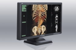 (JUSHA-C43) 4 MP medisch kleurendisplay voor röntgenbeeldvorming, LCD-display, tandheelkundige apparatuur, LCD-monitor
