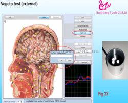Nls Bioplasm cuerpo de la salud de diagnóstico automático escáner con Software original