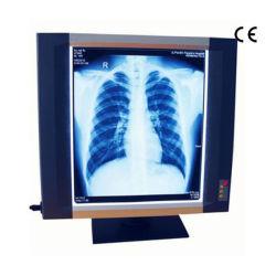 Medische Illuminator van de Film van de Röntgenstraal &Viewer (MSLXF10)