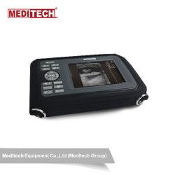 Sono R Palm Ultraschallscanner, leicht und klare Bildqualität