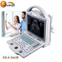 De neigende Hete Leverancier van de Echoscopie Laptop van de Vertoning van 10.4 Duim Volledige Digitale Draagbare Ultrasone klank