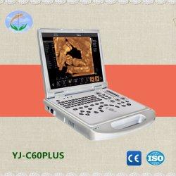 4D-ноутбук цветового доплера портативных ультразвуковых (YJ-C60plus)
