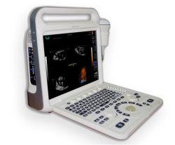 2D/3D/4D携帯用カラードップラー超音波のスキャンナー