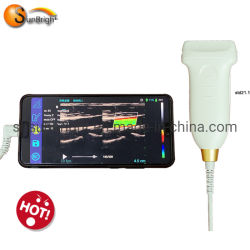 Portable numérique complet doppler couleur sonde linéaire
