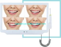 Alta resolução Visualizador Dentária Câmara sem fios trocas Câmara Oral