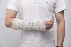 Leg/Arm을 위한 고품질 주조 및 스플라인 신뢰성 의료
