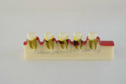 2mal Larged periodontale Krankheit-Fortschritts-Modell