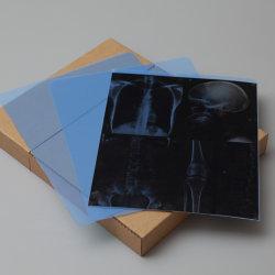 A4 y 10x12 pulgadas de la película de cine de radiología de ultrasonido de inyección de tinta compatible con impresora de imágenes