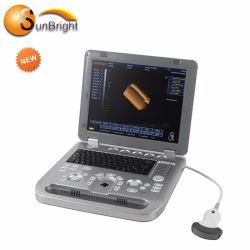 3D 초음파 측정 탐침 초음파 스캐너 Portable 장비