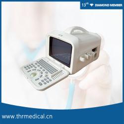Scanner Obstetric portatile diagnostico tenuto in mano medico di ultrasuono (THR-US6601)
