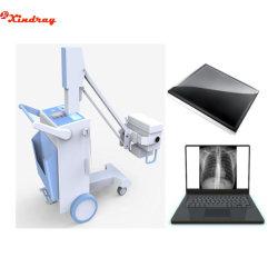 Hochfrequenzdigital Röntgenfotografie-bewegliche mobile 100mA Röntgenmaschine Ausrüstungs-China-