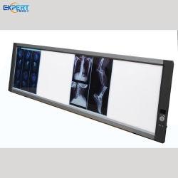 Médico LED Hospital de dupla União Xray Vista única Dental X Caixa do scanner de película de raios