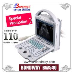 Ultrasonido Digital Machine, Máquina de ultrasonidos portátil, transductor de ultrasonidos, el precio de la sonda de ultrasonido, escáner de ultrasonido de diagnóstico General-Purpose