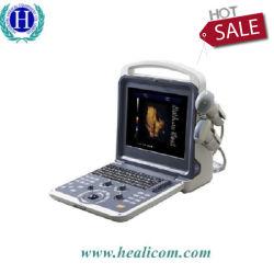 Medizinischer Doppler-Scanner-Ultraschall des Diagnostiksystems-Huc-300 Handder farben-4D