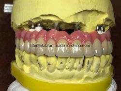 Long Pont de zircone pris en charge par les implants
