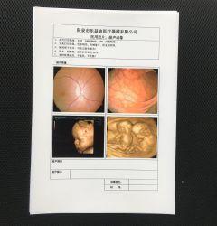 Пленки для струйной печати бумага для принтера A4 и 8*10 для ультразвуковой диагностики и лучевой диагностики