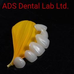 Emax estética e naturais na Coroa de folhear os anúncios do Laboratório de medicina dentária