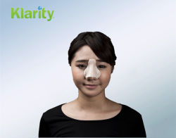 Klarity Thermoplastic nasale splinter