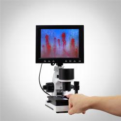 La detección de la salud capilar en la sangre de color de instrumento de la microcirculación Microscopio Mslxw detector01