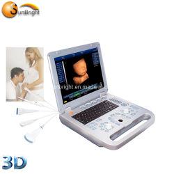 800D de diagnóstico portátil portátil de ultrasonido ecógrafo portátil de Médicos de la máquina