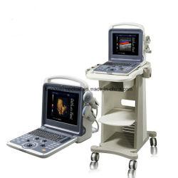 Totalmente digital portátil médicos Doppler a cores scanner de ultra-sons B Máquina com sondas (SLV-S001)