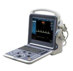 Хорошее качество Huc-260 полностью цифровая цветового доплера ультразвуковой системы диагностики