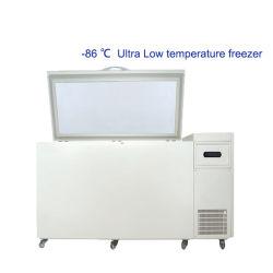- De Medische Diepvriezer van het Laboratorium van de Lage Temperatuur van 86 Graad