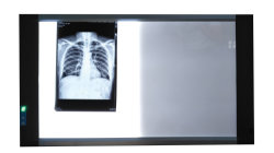 Doppelter Film-Projektor Negatoscope des Panel-X des Strahl-LED medizinischer heller Kasten