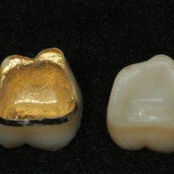 Mer Laboratorio dental de porcelana Metal fundido Pfm Captek corona