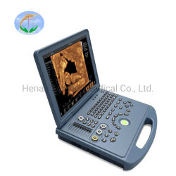 Ordinateur portable 4D plein Échographie Doppler couleur numérique pour les femmes enceintes