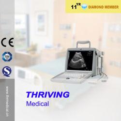 Équipement de diagnostic à ultrasons portable pour l'EFP (thr-US820)