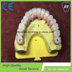 치과 재료 보형물 모든 6 대 전체 윤곽 지르코니아 상치과용 임플란트 브리지