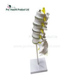 椎間の病気の解剖モデルが付いているSacrumの平らな尾骨を搭載するLumbar