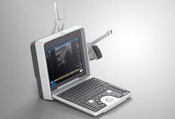 De hoge Hoogste Medische Draagbare Ultrasone klank van de Apparatuur